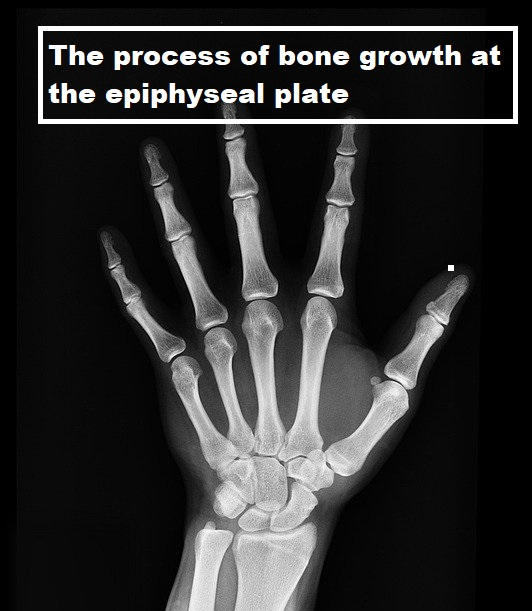 The process of bone growth at the epiphyseal plate