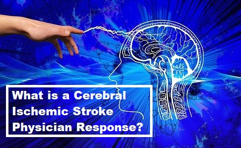 What is a Cerebral Ischemic Stroke Physician Response?