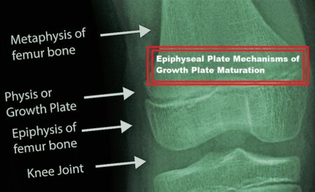 epiphyseal plate issue
